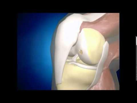 Articolazioni crackle ginocchia con dolore