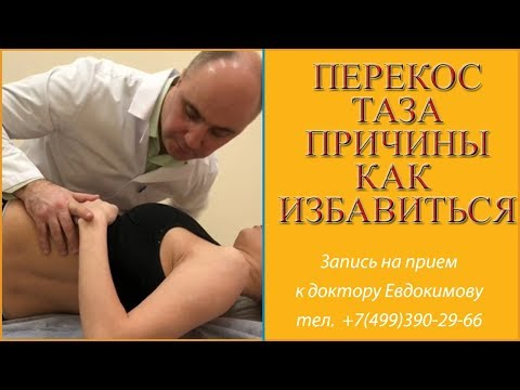 Перекос таза или смещение тазовых костей. Причины перекоса и симптомы. Как убрать перекос таза?