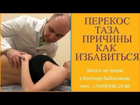 Упражнения при сколиозе 2 степени у взрослых