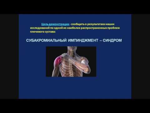Боль в плечевом суставе, импиджмент синдром
