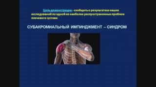 Импиджмент синдром плечевого сустава