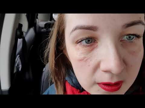 Что с моим лицом? Делаю процедуры биоревитализации от синяков под глазами