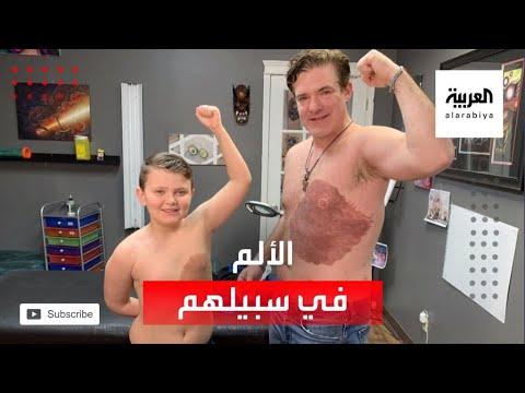العرب اليوم - شاهد: أب كندي يتحمَّل 30 ساعة من الألم لإسعاد ابنه