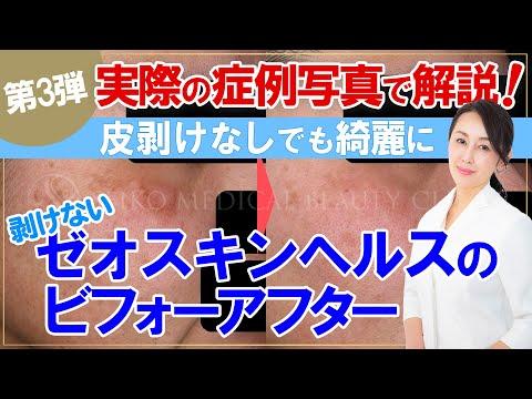 【ゼオスキン】実際の症例写真で解説! ゼオスキンヘルスのビフォーアフター第3弾![肝斑][日光性色素班][しみ]