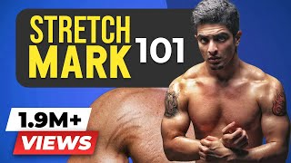 GOODBYE FOREVER - Stretch Marks   Stretch Marks Science, Causes & Treatment   BeerBiceps
