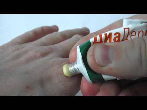 Препараты для лечения диабетической нейропатии нижних конечностей
