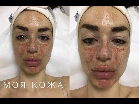 Как избавиться о возрастных пигментных пятен на лице