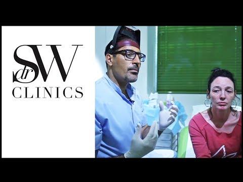 The Plexr treatment - Non-Surgical Blepharoplasty