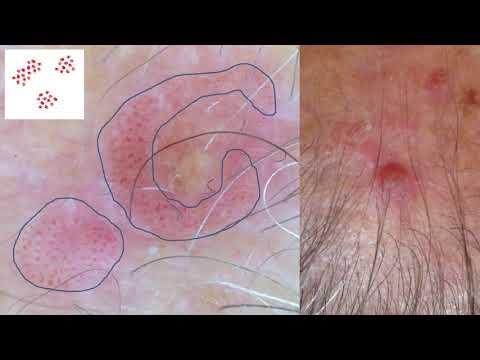 Dermatite bambini immagini