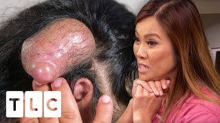 Dr Lee May Have Extracted The Biggest Pillar Cyst She Has Ever Seen! | Dr. Pimple Popper Pop Ups