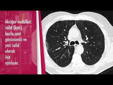 Akciğer nodülleri nasıl sınıflandırılıyor?