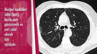 Akciğer nodülleri nasıl sınıflandırılıyor? - Doç. Dr. Özdil Başkan (Radyoloji Bölümü)