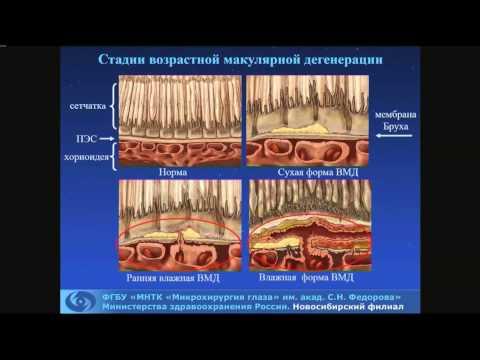 Чехова Т.А. «Как распознавать и лечить возрастную  макулодистрофию? Клинические разборы»