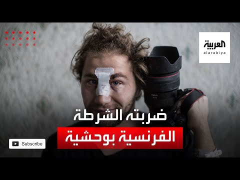العرب اليوم - شاهد: مصور سوري يروي ما تعرض له من عنف الشرطة في فرنسا