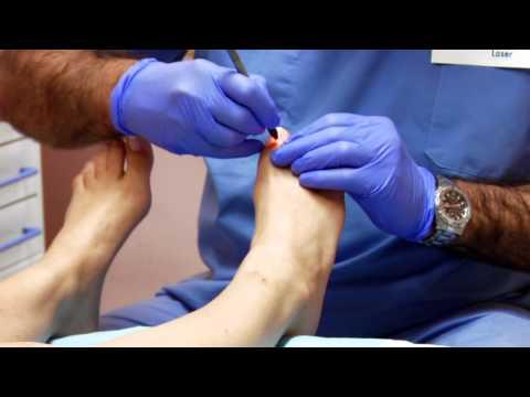 El tratamiento del hongo de las uñas preporatami