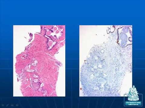 Recensioni conseguenze di chirurgia della prostata