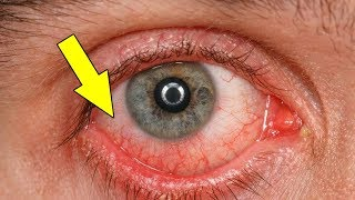 How To Get Rid Of Red Eyes Quickly At Home|Home Remedies For Red Eyes