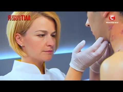 Die nicht traditionelle Methode der Behandlung der Wirbelsäule