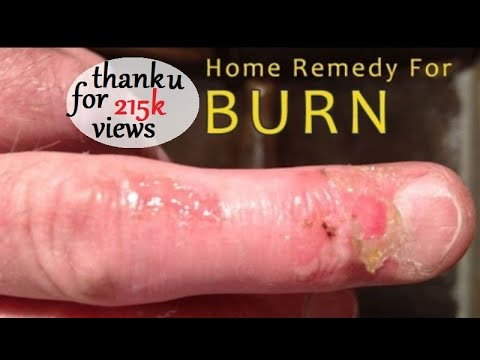 Video Home Remedy For Burns - First Aid and Home Remedies to Treat Burns