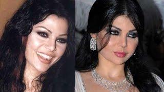 هيفاء وهبي - قبل وبعد عمليات التجميل - Haifa Wehbe Before After Surgery