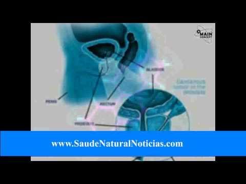 Tratamento de condições da próstata