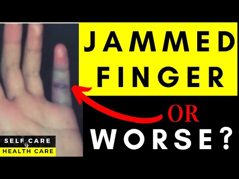 Video Physical Therapy Video: Jammed finger or something worse?