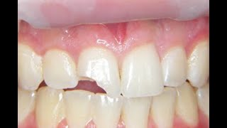Fix a Chipped or broken tooth at home, cheap!