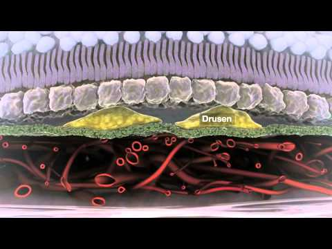 Le retrait de linflammation des veines à la phlébite