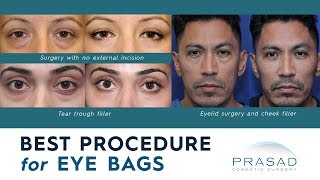 Best Procedures for Treating Puffy Under Eye Bags and Adjacent Hollowness