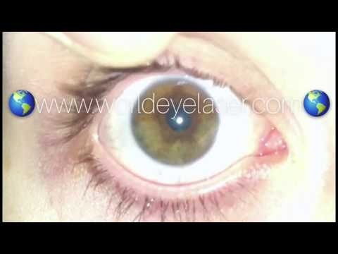 EYE COLOR CHANGE PERMANENTLY! 5G PLUS LASER! FROM FIRST DAY UNTIL