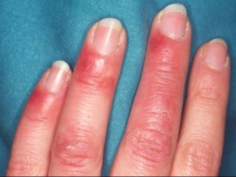 El tratamiento trihofitii de las uñas a la persona