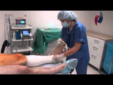 Radioloģija Prostatas vēža