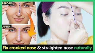 Fix crooked nose, uneven nose tip, deviated nose & straighten nose naturally | Exercises & Massage.