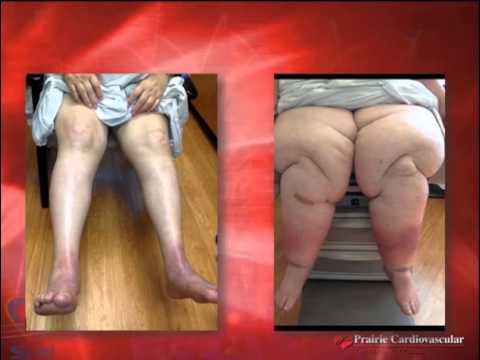 Rimedi per varicosity di gambe