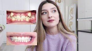 3 Senelik Diş Teli Serüveni, Süreç, Ağrılar ve Özgüven