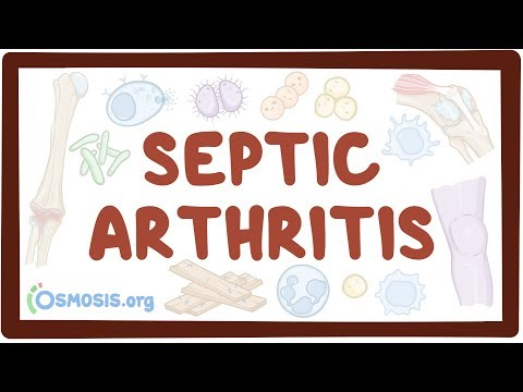 Septic arthritis - causes, symptoms, diagnosis, treatment, pathology