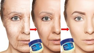 Look 10 Years Younger Using Vaseline   How To Get Rid Of Wrinkles, Fine Lines, & Sagging Skin