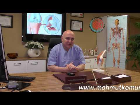Skoliose und Osteochondrose Wucherungen