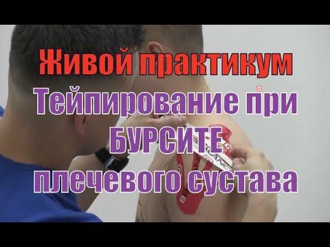Тейпирование при бурсите плечевого сустава и сопутствующей боли