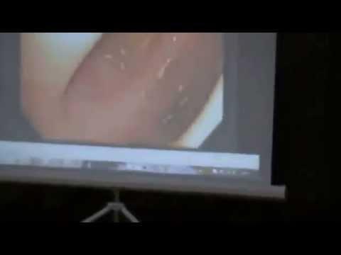 Глисты и паразиты в организме человека фото и видео