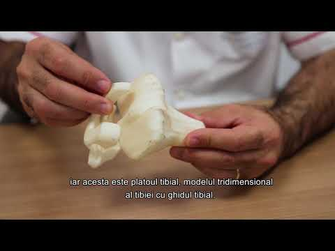 Condromul tratamentului articulației genunchiului