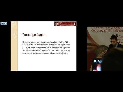 Β Λαγόπουλος - Σε τοπική υποτροπή καρκίνου καρδιοοισοφαγικής συμβολής Κατά βάση επανεπέμβαση
