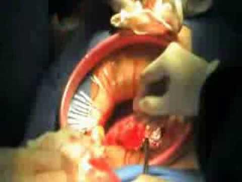 การผ่าตัดเอากระดูกบนนิ้วเท้าใหญ่ใน Chelyabinsk