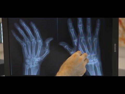 Osteochondrose der lumbalen Behandlung in Ufa