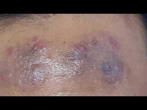 Quello che differisce la dermatite atopic da neurodermatitis in