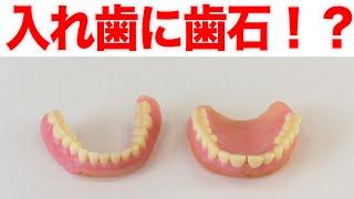 入れ歯には歯石がつかない?