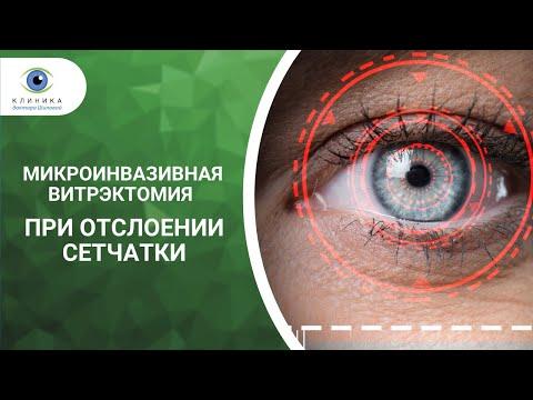 Слепота и понижение зрения обоих глаз с нарушением зрения 2 9 категории в