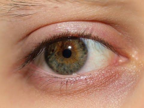 Warum kommen die dunklen Kreise nach die Augen vor