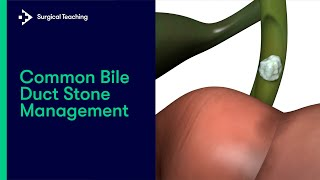 How to Manage Common Bile Duct Stones