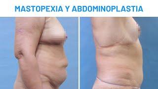 Mastopexia y Abdominoplastia  Testimonios Clínicas Diego de León